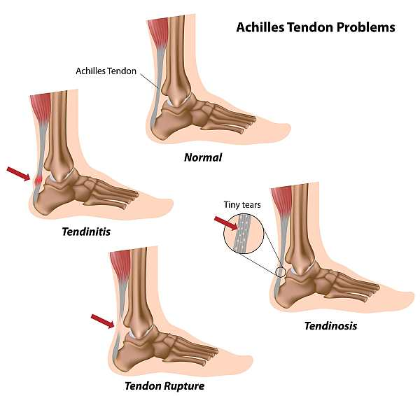 Achilles Tendon Problems goPhysio