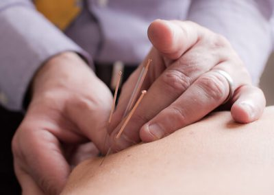 acupuncture treatment goPhysio Hampshire