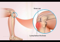 Osgood Schlatters knee image