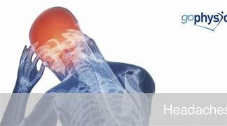 Tension Headaches: Causes & Solutions