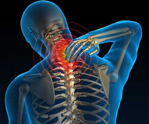 A pain in the neck? Not with Pilates