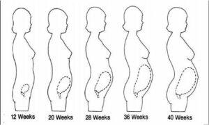 pregnancy postural changes