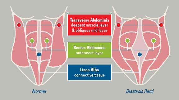 Diastasis Recti – Separation of tummy muscles